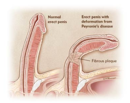 Detoxionis  - Le Gel Penis pour Homme - Approuve par les medecins